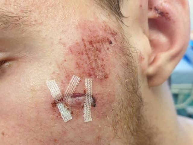 One of Victor's injuries.